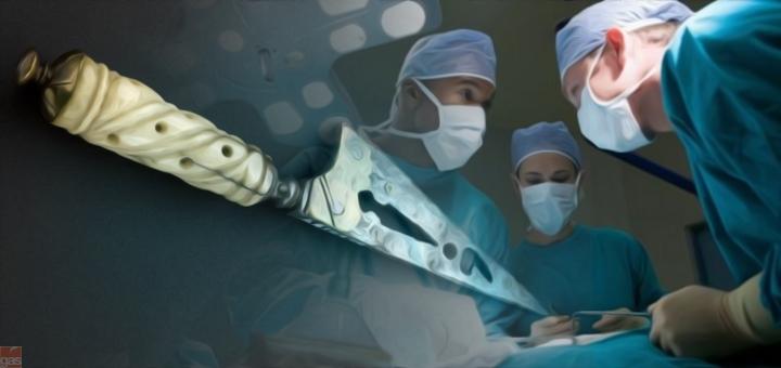circoncisione copia